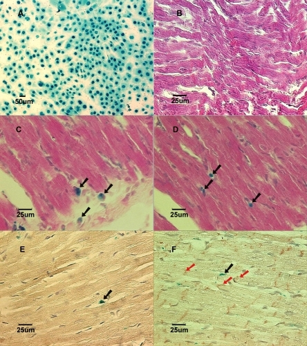 A:Lac-Z labeled MSCs (blue) prior to implantation in culture dish. B: (Group NB) Cross-section of myocardium 3 weeks after implantation showed no labeled MSCs in a normal growing heart. Stained with X-gal and counterstained with hematoxylin and eosin. C: (Group AL) Cross-section of myocardium 1 week after implantation showed Lac-Z positive cells in the infarcted area. Stained with X-gal and counterstained with hematoxylin and eosin. Black arrows show X-gal positively stained cells. D: (Group BL) Cross-section of myocardium 1 week after implantation showed Lac-Z positive cells in the infarcted area. Stained with X-gal and counterstained with hematoxylin and eosin. Black arrows show X-gall positively stained cells. E: (Group AL) Cross-section of myocardial scar 6 weeks after coronary ligation showed Troponin I-c positive cells. Brown color in the cytoplasm indicates positive stain. Counterstained with hematoxylin. Black arrow showed Lac-Z positive cell. F: (Group BL) Cross-section of myocardial scar 6 weeks after coronary ligation showed Connexin-43 positive cells in the peri-infarcted area. Counterstained with hematoxylin. The red arrows show Connexin-43 positive staining. Black arrow shows Lac-Z positive stained cells.