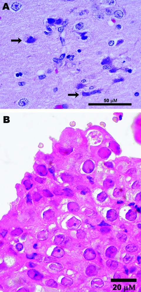 Photomicrographs showing A) encephalitis with neuronal necrosis and intranuclear inclusions (arrows) in a polar bear (Ursus maritimus); scale bar = 50 μm; hematoxylin and eosin stain; and B) Grevy's zebra (Equus grevysi) with acute rhinitis with eosinophilic inclusions in respiratory epithelium; scale bar = 20 μm; hematoxylin and eosin stain.