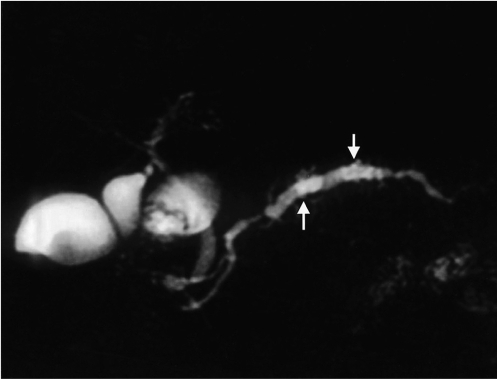 A 60-year-old man with benign main duct-type IPMT of the pancreas. Single-slab MRCP image (TR/TE, infinite/1200) shows diffuse dilatation of the main pancreatic duct (arrows).