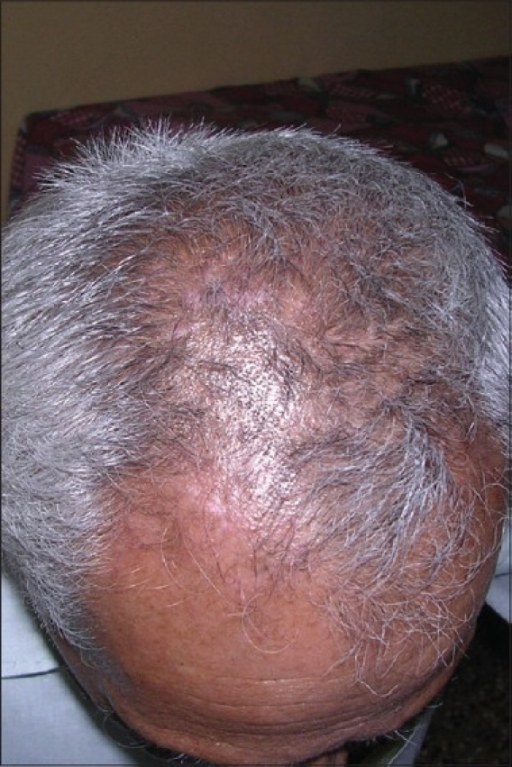 Vitiligo lesion on the scalp after treatment with noncultured epidermal suspension
