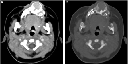 Axial contrast-enhanced CT scan images in (A) soft-tissue window and (B) bone window settings show an expansile, bilobed, well-circumscribed, solid lesion with epicenter in the anterior maxillary alveolar ridge. Bone margins are continuous, thin, lobulated with areas of sclerosis and hyperostosis. Moderate soft-tissue enhancement is present. Note the displaced developing teeth.