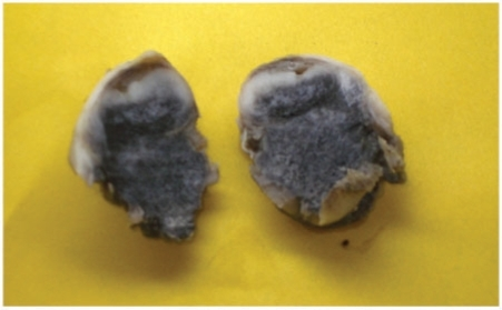 Image of the extirpated specimen showing an oval mass with bluish-black pigmented areas.