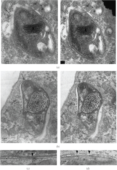 Transmission electron microscopy (TEM) of thin sections of macrophages infected with trypomastigote forms of T. cruzi. Micrographs taken at different inclination angles of the section. Focal disruption of the membrane lining the vacuole is observed (arrows in (a) and (b)) and especially in (c) and (d);  K = kinetoplast, P = parasite. Bars = 1 μm (after [52]).