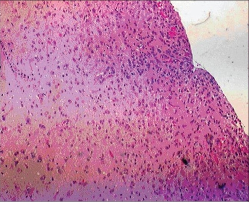 Low-power magnification of temporal lobe specimen showing low-grade astrocytoma infiltrating the cortex with subpial accumulation of tumor cells