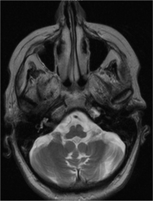 Axial, T2-weighted magnetic resonance image of the patient, showing atrophy of the cerebellum and the cerebellar vermis.