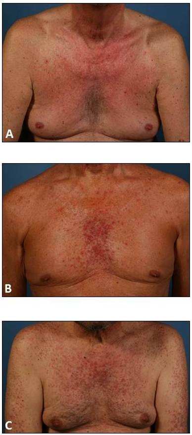 Severity of EGFRI-induced papulopustular rashes. Rash severity was assessed using the EGFRI-induced rash severity score (ERSS). ERSSs may range from 0 (no skin affection), over (A) 1 to 20 (mild), (B) 20 to 40 (moderate), up to (C) scores exceeding 40 points, indicating severe cases.