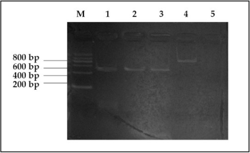 Electrophoretic pattern of PRAME mRNA. M, Marker; 1, M2; 2, M3; 3, ALL; 4, β-actin; 5, negative control.