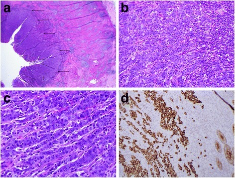 Histology of the primary tumor. a) The well-circumscribed primary medullary carcinoma is on the left (arrows). The caecal muscular wall (right) shows a marked Crohn's-like inflammatory infiltrate. b and c) Tumor cells are arranged in cords with associated intra-tumoral lymphocytes. Gland formation is absent. There are high-grade cytologic features and several mitoses. Necrosis is absent. d) Pancytokeratin positivity of the tumor cells. Normal colonic epithelium at bottom right provides a positive internal control.