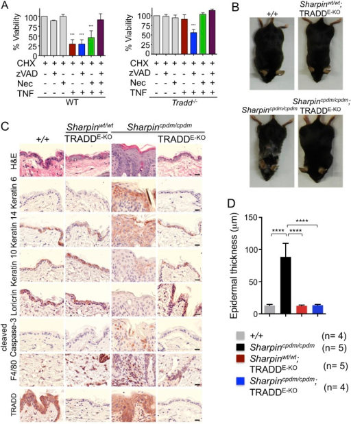 Tumor necrosis factor receptor 1-associated death domain (TRADD) deficiency in keratinocytes prevents skin inflammation in Sharpincpdm/cpdm mice.(A) The percentage viability of wild type (WT) mouse embryonic fibroblasts (MEFs) (n = 3) and TRADD-deficient MEFs (n = 3) upon tumor necrosis factor (TNF), cycloheximide (CHX), caspase inhibitor (zVAD), and Necrostatin-1 (Nec) treatment alone or in combination for 20 hr and measurement by WST-1 assay. Bars represent average cell viability (± SD) of three independent experiments. (B and C) Macroscopic gross appearance of the WT (+/+) and littermate mice of the indicated genotype at the age of 12 weeks (B) and (H&E), Keratin 6, 14, 10 and Loricrin as well as cleaved caspase-3 and F4/80 staining of the skin sections from 12-week-old mice of the indicated genotypes (C). Scale bars in (C) are 100 μm. (D) Microscopic quantification of the epidermal thickness from 12-week-old littermate mice of Sharpincpdm/cpdm, Sharpinwt/wt;TRADDE-KO, Sharpincpdm/cpdm;TRADDE-KO and age-matched WT (+/+) is shown. Bars represent mean values ± SD. Statistical significance was determined using the one-way ANOVA test (****p ≤ 0.0001).DOI:http://dx.doi.org/10.7554/eLife.03422.006