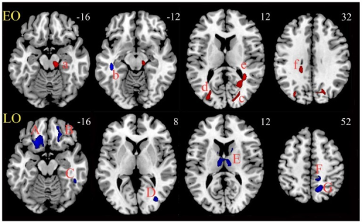 FA clusters for EO vs. LO MDD.Upper panel (EO): Five clusters (a, c–f) with increased FA (red color) but one cluster (b) with decreased FA (blue color) was found in EO patients, compared with the paired HCs. Lower panel (LO): seven clusters (A–G), all with decreased FA (blue color), were found in LO patients compared with the paired HCs. EO, early onset; LO, later onset; MDD, major depressive disorder; HCs, healthy controls.