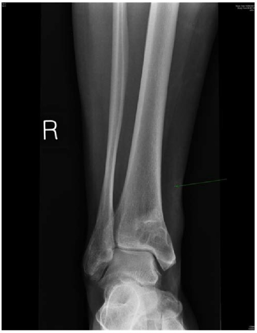 AP X-ray of ankle showing cystic lesion in distal tibia.