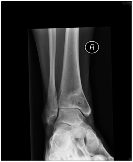 AP X-ray showing reoccurrence of cystic lesion distal tibia.