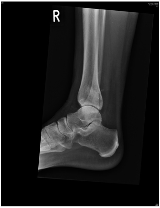 Lateral view X-ray at follow-up showing complete incorporation of graft and healing of lesion.