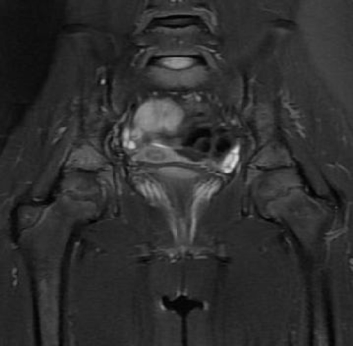 6 months later: signal intensity of edemain. The bilateral acetabulum has decreased, however, there are new edema signals noted in the sacrum