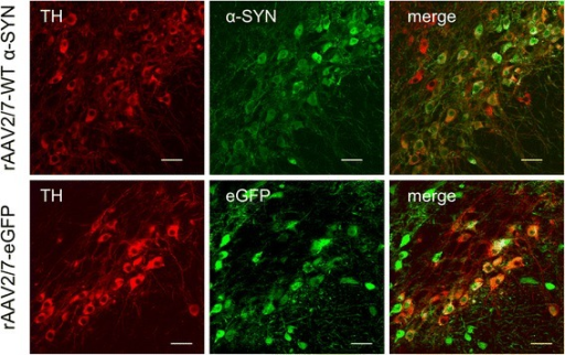 High transduction efficiency of mouse dopaminergic neurons with rAAV2/7-WT α-SYN and rAAV2/7-eGFP. Fluorescent double stainings for TH and α-SYN at 1 week or TH and eGFP at 4 weeks after injection of rAAV2/7-WT α-SYN or rAAV2/7-eGFP respectively, demonstrate that the majority of the dopaminergic neurons of the injected side of the SN is transduced. Scale bar = 25 μm.