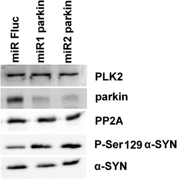 Increased P-S129 α-SYN in human SHSY5Y neuroblastoma cells after parkin knockdown. Western blotting against PLK2, parkin, PP2A, P-Ser129 α-SYN and α-SYN. The miRs against parkin induced both parkin knockdown and an increase in P-Ser129 α-SYN signal without affecting α-SYN, PLK2 and PP2A levels. A miR against firefly luciferase (Fluc) was used as control.