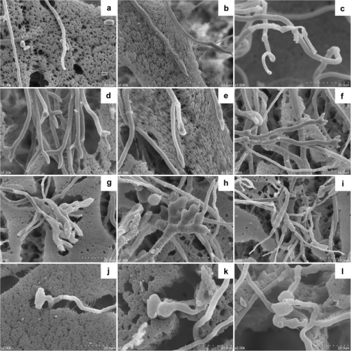 Hyphal and conidial morphology of Monilinia fructicola treated by the VOCs from Ceratocystis fimbriata observed by scanning electron microscope (SEM).(a) Mycelia of M. fructicola growing on PDA medium. (b-e) Misshapen mycelia of M. fructicola with 6-day exposure to the VOCs from C. fimbriata. (f-i) Recovered mycelia of M. fructicola was transferred to a fresh PDA plate after 6-day exposure to the VOCs from C. fimbriata and grown for another four days. (j) Conidia of M. fructicola. (k) Misshapen conidium of M. fructicola with 6-day exposure to the VOCs from C. fimbriata. (l) Recovered conidia of M. fructicola transferred to a fresh PDA plate after 6-day exposure to the VOCs from C. fimbriata and grown for another four days.