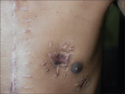 Picture of patient showing scar at site of insertion of pins and needles and midline thoracotomy scar