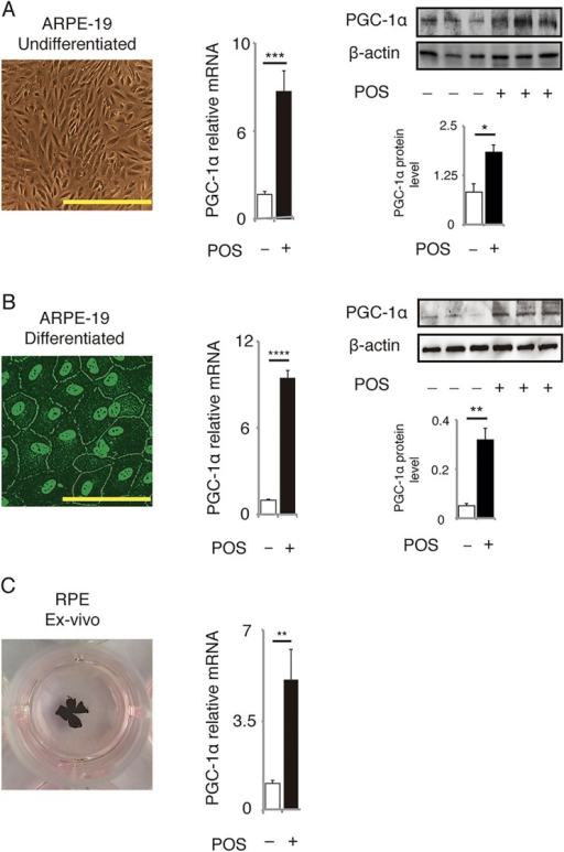 POS upregulate PGC-1α in RPE cells.PGC-1α mRNA and protein levels were upregulated in (A) undifferentiated ARPE-19 cells, (B) differentiated ARPE-19 cells, and (C)ex vivo RPE cells, treated with POS for 3 h for evaluation of mRNA and for 6 h for evaluation of protein levels. Morphology of differentiated ARPE-19 cells was confirmed by immunofluorescence for ZO-1 antibody. Mean ± SEM, n = 6–10 per group for mRNA level, n = 3 per group for protein level, two-tailed Student's t-test, ***P < 0.001, ****P < 0.0001, **P < 0.01, *P < 0.05. Scale bars in the images of undifferentiated and differentiated ARPE-19 cells represent 100 μm and 200 μm, respectively.