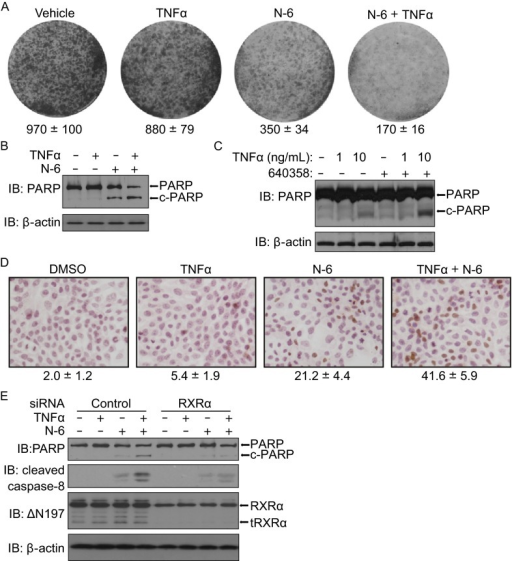 Combination of TNFα and N-6 induces cancer cell apoptosis in an RXRα/tRXRα-dependent manner. (A) HeLa cells grown in 6-well plates were treated with or without N-6 (5 μmol/L) and TNFα (10 ng/mL) for 3 days. Colonies were stained with 0.1% crystal violet and counted. (B and C) HCT116 and MCF-7 cells were treated with or without N-6 (10 μmol/L) and TNFα (10 ng/ mL) for 15 h in serum free medium. Cell lysates prepared were analyzed by Western blotting for PARP cleavage. (D) MCF-7 cells grown in 24-well plates were treated with or without N-6 (10 μmol/L) and/or TNFα (10 μg/mL) for 3 days. Apoptotic cells were detected by TUNEL staining and counted. (E) HCT116 cells transfected with RXRα siRNA or control siRNA for 48 h were treated with or without N-6 (10 μmol/L) and TNFα (10 ng/mL) for 15 h. Cell lysates prepared were analyzed by Western blotting for PARP and caspase-8 cleavage. One of three similar experiments is shown