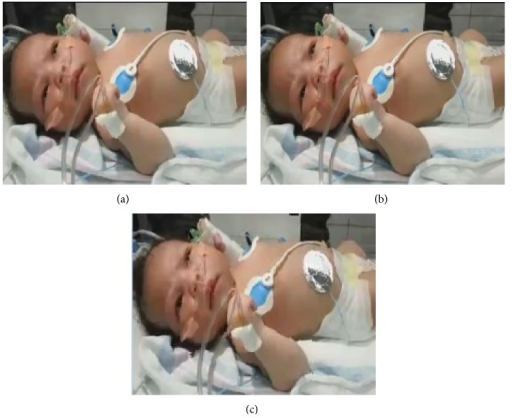 10th frame of neonatal video sequence. (a) Original image, (b) image using video original coding, and (c) image with EEG data.