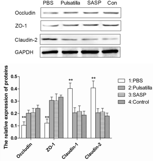 Modified Pulsatilla decoction treatment restores the alteration of tight junction proteins in colon epithelial cells. The expression levels of tight junction proteins, occludin, ZO-1 and claudin-2 in colonic epithelial cells of mice treated with or without modified Pulsatilla decoction or SASP were detected using western blot analysis. Data are expressed as the mean ± standard deviation. **P<0.01 vs. the control group. PBS, phosphate-buffered saline; SASP, sulfasalazine; Con, control.