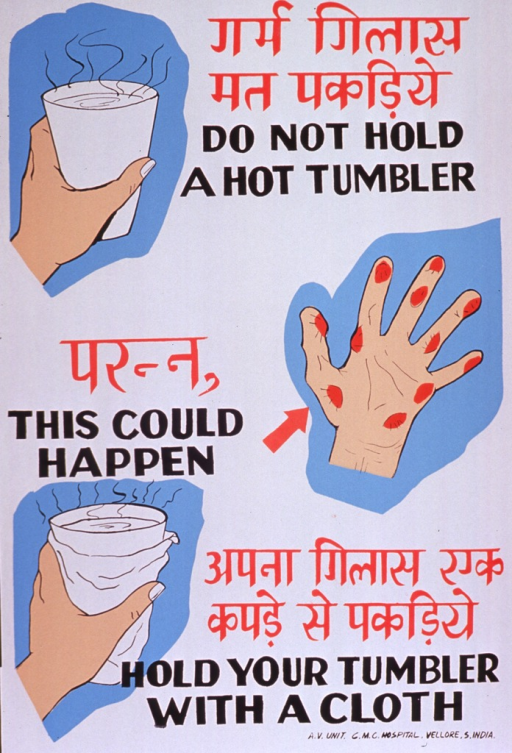 <p>Predominantly white poster with red and black lettering.  Some text in a Devanagari script (Hindi?).  Text dispersed throughout poster.  Visual images are illustrations of a bare hand holding a glass filled with a steaming hot liquid, a burned hand, and a hand holding a wrapped glass of hot liquid.  Publisher information in lower right corner.</p>