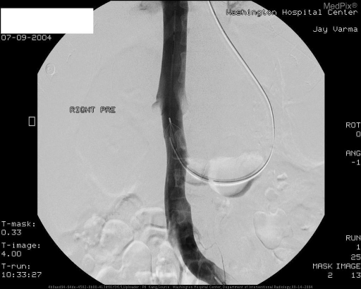 2.  Pre-retrieval IVC-gram demonstrates no evidence of thrombus, especially at the level of the filter.