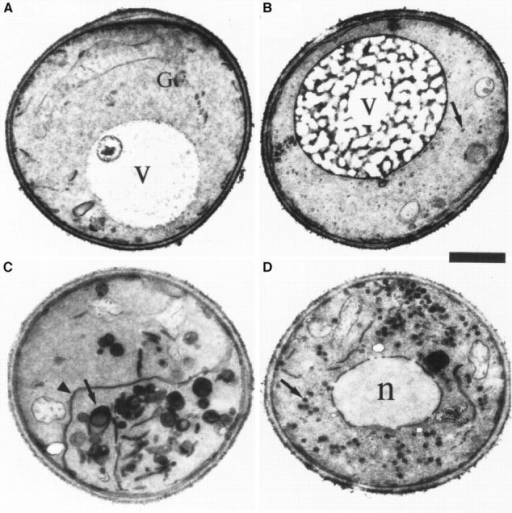 ypt31-Δ/ypt32A141D mutant cells accumulate aberrant Golgi-like  structures at the nonpermissive temperature. Wild-type  and three strains mutated at  the analogous conserved residue in YPT1, YPT32, and  SEC4 were analyzed by electron microscopy. Electron  micrographs of representative cells are shown for the  following strains: (A) wildtype (NSY128), (B) ypt1A136D (NSY222), (C) ypt31Δ/ypt32-A141D (NSY348),  and (D) sec4-G147D (PNY  404). Cells were grown at  26°C, shifted to 37°C for 2 h,  and then processed for thin  section electron microscopy.  Arrows point to membranous structures unique to  each strain. Arrowheads indicate ER. G, wild-type Golgi  cisterna (shown in detail in  Fig. 9 A, second panel from  left); V, vacuole; n, nucleus.  (E) Quantification of the distinct membranous structures  that accumulate in the different mutant strains: small vesicles (50–80 nm), Golgi (cisternae or Berkeley bodies),  and large vesicles (100–150  nm). Bars represent the  mean number of structures in  30 cell sections. Data is normalized to density per cubic  micrometer for vesicle populations and density per 10  μm2 for cisternae and Berkeley bodies. Error bars represent one standard deviation  (see Materials and Methods  for details of the quantification procedure). The relatively high standard deviations are probably due to the  aggregation of the aberrant  membranes to one side of the  cell, resulting in cell sections  that are either rich in or devoid of the corresponding  membranous structure. Bar,  1 μm.