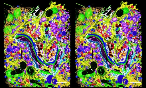 Stereo views of a model generated by tomographic reconstruction of a slab of cytoplasm from a cultured cell, strain HIT-T15. Three serial 400-nm sections were reconstructed by dual axis tomography, and the IMOD software package was used to model all visible objects within a volume 3.1 × 3.2 × 1.2 μm3 (see Marsh et al. 2001 for details). The model displays the Golgi complex in the context of surrounding organelles: ER, yellow; membrane-bound ribosomes, blue; free ribosomes, orange; MTs, bright green; dense core vesicles, bright blue; clathrin-negative vesicles, white; clathrin-positive compartments and vesicles, bright red; clathrin-negative compartments and vesicles, purple; mitochondria, dark green. Reprinted with permission from the authors and the Proceedings of the National Academy of Sciences. Bars, 500 nm.