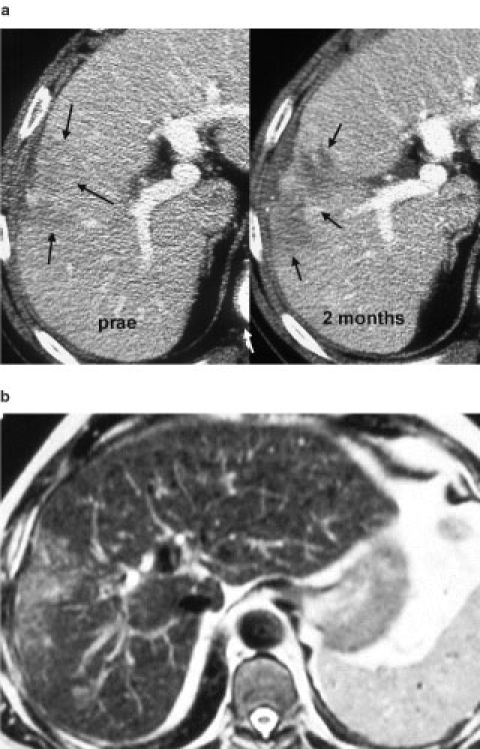 (a) 69-year-old patient with histopathologically proven HCC in segment 5/8. Pretreatment CT scan on the left side, lesion identified with decreased attenuation values. CT scan 2 weeks after the fourth/last treatment with IntraDose® gel. Segment 5/8 reveals an irregular area of necrosis that developed after treatment (arrows). Both scans portal venous phase. (b) MRI scan (T2-weighted) 2 years after treatment, The lesion is still detectable but has not changed in size, the patient is in a good clinical condition.