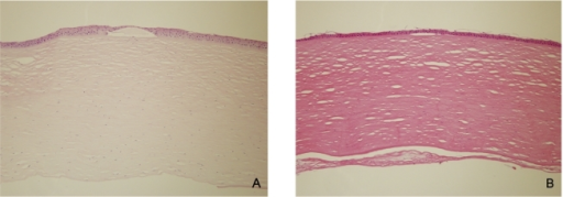 A, B, Hematoxylin and eosin-stained sections of the corneal button obtained at the time of penetrating keratoplasty. The lack of endothelial cells was noted in (A) (patient 10) and subendothelial fibrosis was noted in (B) (patient 13). ×100.