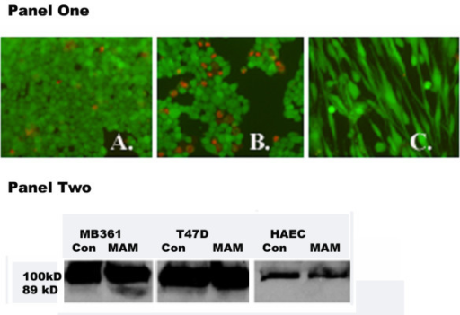 Panel One: Incubation of MB361 cells with anti-MAM antibody and induction of cell apoptosis. Cell viability assay was conducted after incubation of MB361 breast cancer cells with anti-MAM. The number of the dead cells (in red color) was found higher in the anti-MAM incubated cancer cells (B), as compared with that in the non-incubated MB361 cells (A). There were no or few dead HAEC cells (C). The images were taken with objective lens 10×. Panel Two: Western blot assay for the pro-PARP-1 (100 kDa) and activated PARP-1 (89 kDa) in the protein lysates of MDA-MB361, T47D, and HAEC cells. The Con – control cells with no anti-MAM antibody inoculation, MAM – cells with anti-MAM antibody inoculation.