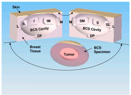 Computer-generated representation of the resultant breast-conserving surgery (BCS) resection bed cavity and the BCS specimen resulting from a BCS procedure performed on a left breast. In this example, the area of the BCS resection bed cavity has been bisected along its long axis to illustrate the exact spatial location from where the nine standardized re-resection margins were sampled from the superior (S), superior-medial (SM), superior-lateral (SL), medial (M), lateral (L), inferior (I), inferior-medial (IM), inferior-lateral (IL), and deep-posterior (DP) aspects of the BCS resection bed cavity.