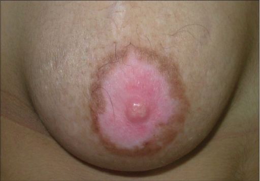 Stable vitiligo of the areola