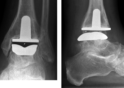 dupuy advantage prothesis This content is intended for healthcare professionals only if you are not a healthcare professional, please consult your doctor about the risks and benefits of surgery.