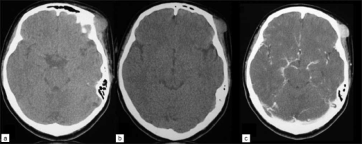 CT scan showing (a, b) precontrast images of extracranial mass of cutaneous malignant melanoma of the left supraorbital area with no bone involvement and (c) strongly enhanced melanoma