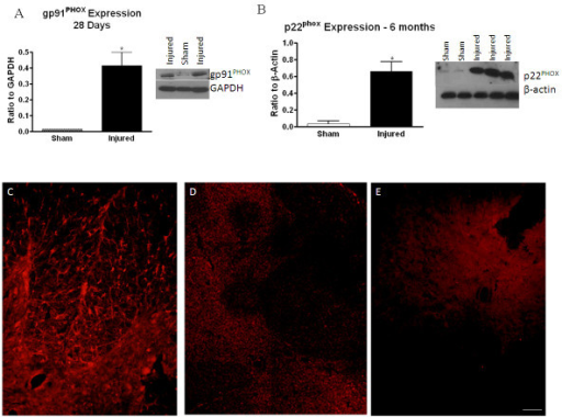 Confirmation of components of the NADPH oxidase enzyme. NADPH oxidase components gp91PHOX (A) and p22PHOX (B) were confirmed using western blotting at 28 days and 6 months post-injury. Representative western blots and graphical representation are shown. Bars represent mean +/- SEM. *p < 0.05. p22PHOX expression was also confirmed with immunohistochemistry at 28 days post-injury in injured (C) and sham-injured (D) tissue. No immunolabeling was observed in negative controls where primary antibody was excluded (E), and positive labeling had typical ramified or 'bushy' appearance of microglia/macrophages. Size bar = 100 μM.