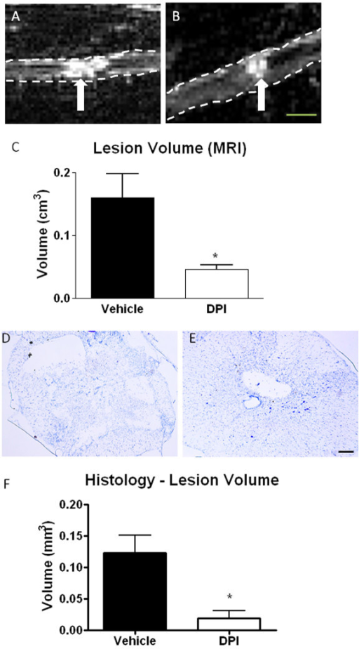 The effect of DPI on lesion volume after spinal cord injury. Lesion volume in vehicle and DPI-treated injured spinal cords was measured at 28 days post-injury using T2-weighted MRI and histology. Representative MRI images of the lesion (hyperintense region, arrow) are shown for vehicle (A) and DPI-treated (B) spinal cords (outlined with dotted line). Representative cresyl violet images are shown for vehicle (D) and DPI-treated (E) spinal cords as well. Quantitation of MRI (C) and histology (F) based measurements are shown. Bar size = 0.25 cm (A, B); 200 μm (D, E). Bars represent mean +/- SEM. *p < 0.05. N = 3/group.