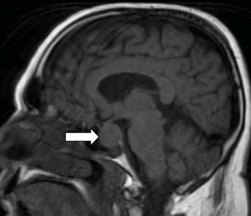 MRI of the brain showing pituitary macroadenoma compres | Open-i