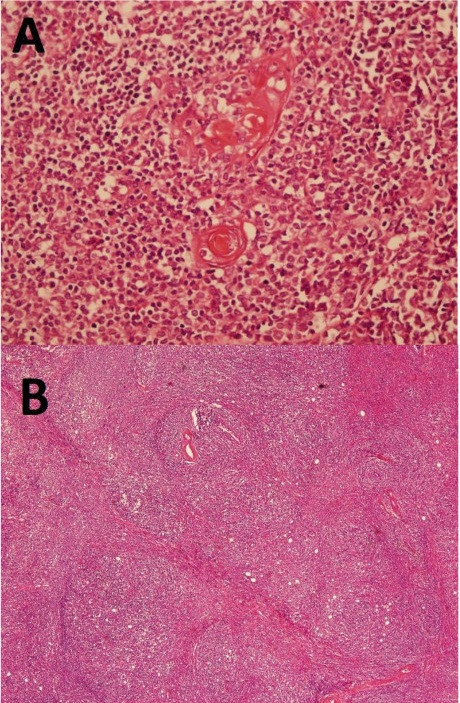 Histopathological evaluation: A. Massive lymphoid infiltration creating a nodular pattern with fibrous septae. B. Epithelial thymic components in massive lymphoid infiltration.