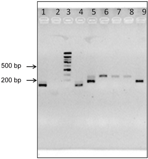 Illustrating electrophoresis of MMPCR products.Ez-vision stained 3% agarose gel containing MMPCR products obtained from DNA extracts of reference strains and current digestive tracts of T. infestans. Lane 1, sample Tor05; lane 2, PCR negative sample; lane 3, the molecular weight marker Smart Ladder (Eurogentec, Angers, France); lane 4–6, reference strains (M6241cl6, P209cl1 and MNcl2 respectively); lane 7–8, sample Char09 (two independent PCR); lane 9, sample Lur112. See Table 2 for DTUs information.