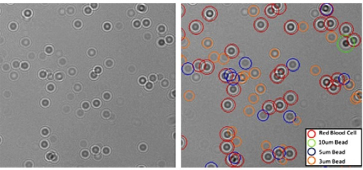 Unprocessed image of a heterogeneous mixture that includes red blood cells and microparticles (10 μm, 5 μm and 3 μm) is shown on the left [76]. Fully-automated LUCAS characterization outcome for the same field of view is demonstrated on the right [76]. Reproduced with the permission of Journal of Visualized Experiments.
