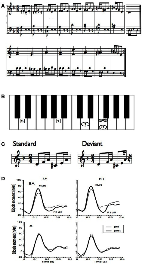 (A) Training material for the rhythm study of Lappe et al. (2011). The training material was taken from a piano exercise book (Proksch M, 2000) (Proksch, 2000). (B) To facilitate training a template was used where the image of the keyboard was shown. In this figure only one measure is depicted. Small circles indicated that notes should be played at double speed. In general the circles marked that the right hand should be used, the rectangles indicated to use the left hand. All numbers depicted in one horizontal line had to be played simultaneously. (C) Stimuli for the MEG measurement before and after training. In the deviant the last tone was presented 100 ms earlier. (D) Group averages of the source waveforms obtained after performing source-space projection before and after training for both groups and hemispheres. Thin lines indicate pre-training and thick lines post-training data. The left column depicts the source waveform of the left, the right column depicts the source waveform of the right hemisphere.