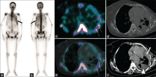 99mTc-methylene diphosphonate bone scintigraphy showing diffusely increased left rib cage uptake (anterior a, posterior b; arrows). Transaxial single photon emission computed tomography (SPECT) and SPECT/CT images (c, e; arrows) show diffusely increased radiotracer uptake involving the left-sided ribs. Transaxial CT (bone window, d) shows normal left-sided ribs with regular cortical outlines. Transaxial CT (soft tissue window, f) shows a pleural-based soft tissue density lesion in the left lung lower lobe (f, arrow head) with diffuse circumferential pleural thickening (f, arrow)