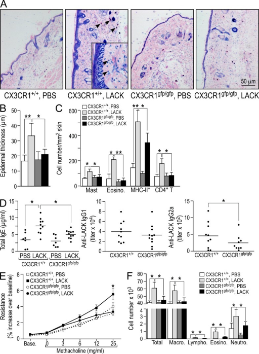 Absence of AD and attenuation of associated humoral and lung inflammatory response in CX3CR1-deficient mice. AD was induced on abdominal skin in CX3CR1+/+ and CX3CR1gfp/gfp mice by epicutaneous LACK sensitization for three 1-wk periods, with a 2-wk interval between applications. At day 49, sera were collected and animals were challenged by LACK nebulization. At day 50, AHR to increasing concentrations of methacholine was measured by invasive plethysmography. Then, mice were sacrificed and BALF was collected and analyzed on cytospin preparations. Skin samples were collected at the site of sensitization. (A) May-Grünwald Giemsa staining of skin sections. Black arrows indicate mast cells and, in the inset, eosinophils. (B) Epidermal thickness. (C) Eosinophil, mast cell, MHC II+, and CD4+ T cell numbers in dermis. (D) Ig concentrations in serum. Total IgE (left), LACK-specific IgG1 (middle), and LACK-specific IgG2a (right) concentrations are shown. Horizontal bars indicate mean. (E) AHR to increasing methacholine concentrations. Resistance was evaluated by invasive plethysmography. (F) Lung inflammatory response: total number of cells, macrophages, neutrophils, lymphocytes, and eosinophils in BALF. Data are expressed as mean ± SEM (n = 6–10 animals per group). One out of two independent experiments is shown for each panel. *, P < 0.05; ** P < 0.01.