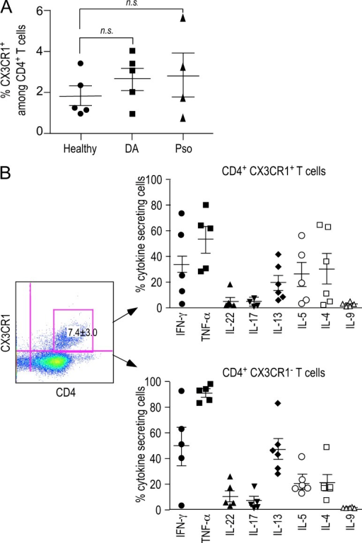 CX3CR1 is expressed by skin-infiltrating CD4+ T cells in AD patients. (A) CX3CR1 expression by circulating CD4+ T cells. PBMCs from patients with AD or from healthy donors were analyzed by flow cytometry for CX3CR1 expression. Data show frequency of CX3CR1+ cells among CD4+ T cells in individual donors. (B) Cells from skin biopsies were characterized by surface and intracellular staining by flow cytometry. Left panel shows a representative FACS profile. Numbers indicate the mean ± SEM of the frequency of CX3CR1+ among CD4+ T cells from n = 6 patients. Right panels show frequencies of cytokine-secreting CX3CR1+ and CX3CR1− CD4+ T cells for each patient. Error bars indicate SEM.