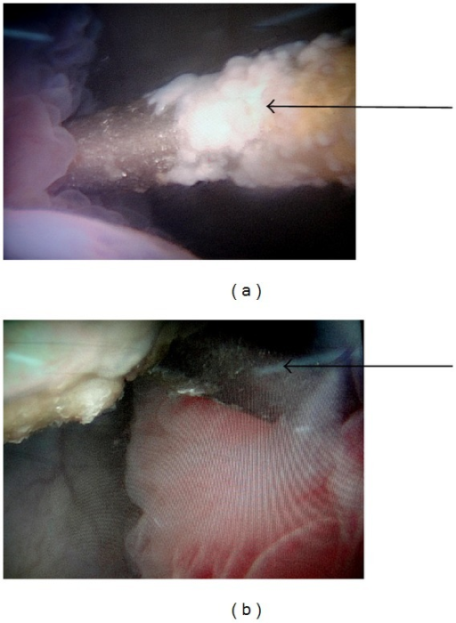 (a) Cystoscopic photograph showing the encrusted K-wire perforating through the right lateral wall of the bladder. (b) Cystoscopic photograph showing the K-wire exiting through the left lateral wall of the bladder.