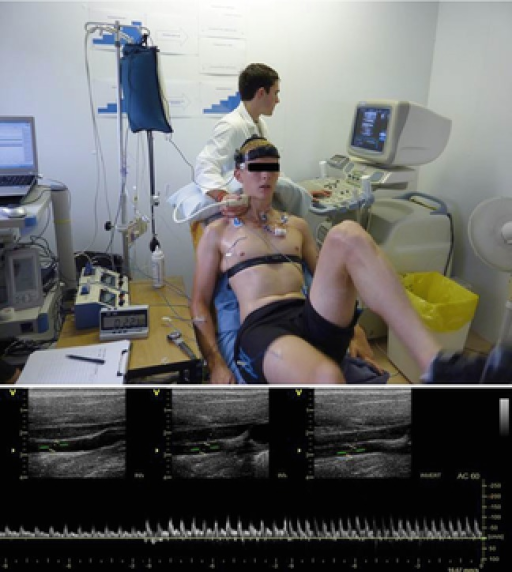 Experimental arrangement and ultrasound recordingPhoto depicting one of the participants in the study performing an incremental cycling test on a semi-recumbent cycle ergometer (Lode Angio, Groningen, the Netherlands) with a backrest inclination of 45 deg, while measurements of ICA and CCA blood flow were obtained at each stage. Representative images of real time ICA blood velocity recordings at rest, submaximal and peak exercise are shown.