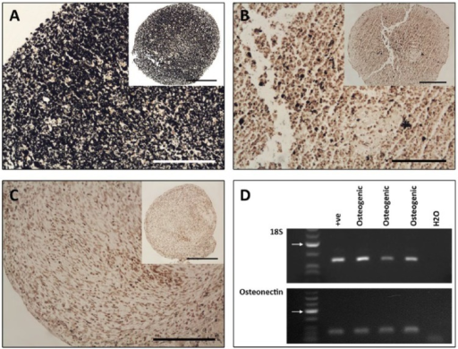 Representative samples of osteogenic induction of cartilage stem cells. (A and B) Osteogenic pellets stained using von Kossa for mineral deposits. (A) An abundance of mineral deposits identified throughout the osoteogenic pellet. (B) Sparse deposits within the osteogenic pellet. (C) Control pellet. A-C Scale bars = 50 µm (insert = 100 µm). (D) Representative examples of osteogenic induction in pellets showing 18S and osteonectin gene expression by RT-PCR. Arrows indicate 200 base pair mark.
